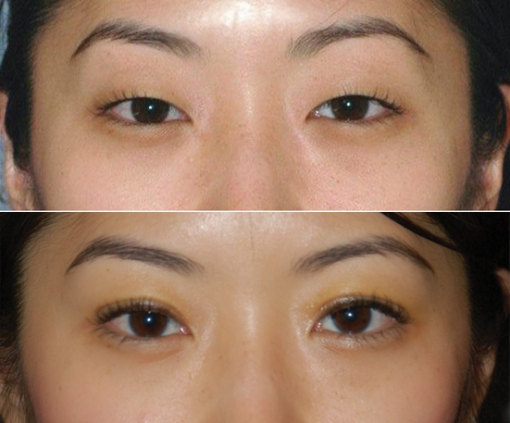Saving Face: More Asian Americans opting for plastic surgery | Hyphen ...